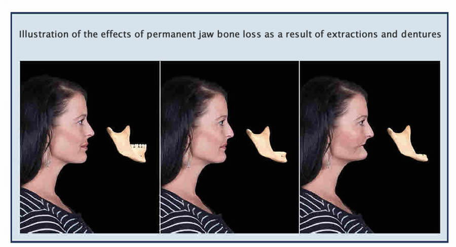jaw-bone-loss-extractions-dentures