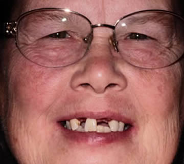 1-before-after-dentist