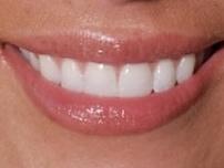 dentures-greenwood-dentist