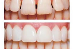 greenwood-dentist-veneers