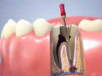 root-canal-service-greenwood
