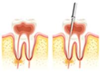 rotary-endodontics-greenwood