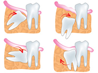 wisdom-teeth-extractions-small