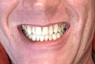 after-dental-implants-bonding-white-filling