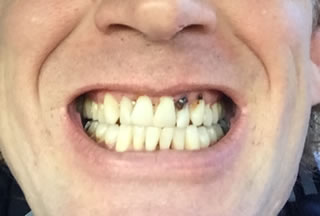 before-dental-implants-bonding-white-filling