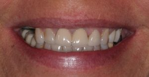 front-crowns-treatment-1