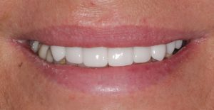 front-crowns-treatment-2