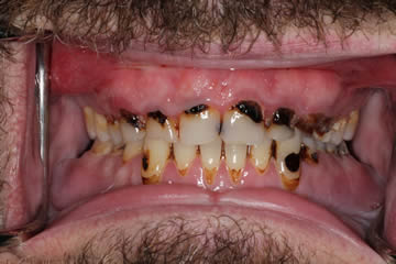 dental-photo-before-after-cosmetic-1