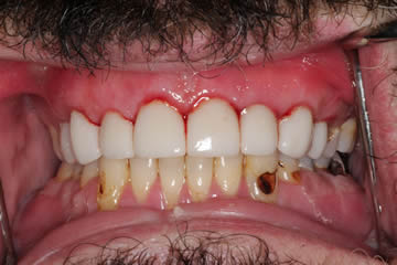 dental-photo-before-after-cosmetic-2