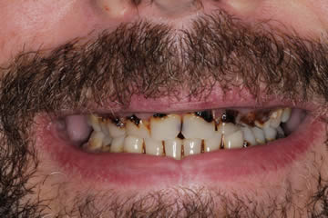 dental-photo-before-after-cosmetic-3