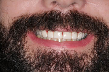 dental-photo-before-after-cosmetic-4