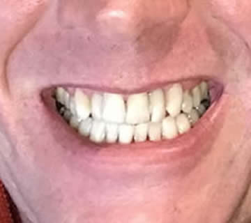 dental-photo-before-after-cosmetic-decay-removal