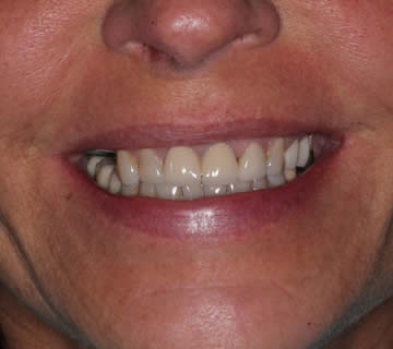dental-photo-before-after-crowns-1