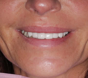 dental-photo-before-after-crowns-2