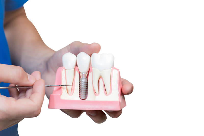 what-is-a-dental-implant