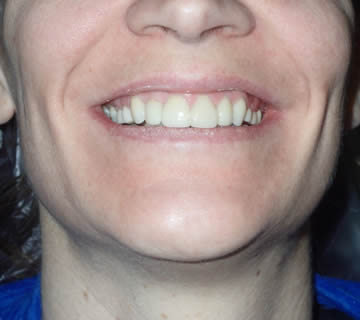 cosmetic-dentist-before-after-photo-crowns-greenwood-indiana-1