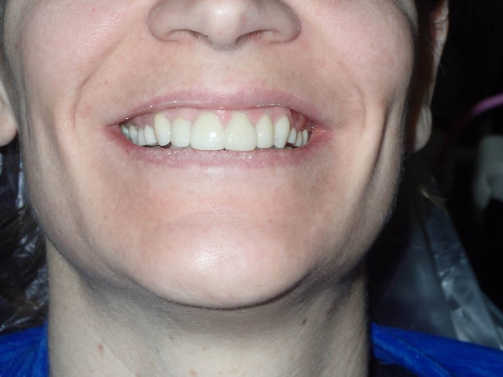 cosmetic-dentist-before-after-photo-crowns-greenwood-indiana-1a