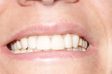 cosmetic-dentist-before-after-photo-crowns-greenwood-indiana-3