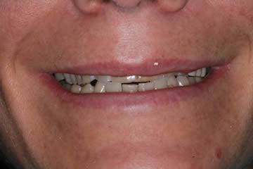 cosmetic-dentist-before-after-photo-crowns-greenwood-indiana-4