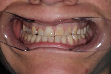 cosmetic-dentist-before-after-photo-crowns-greenwood-indiana-5