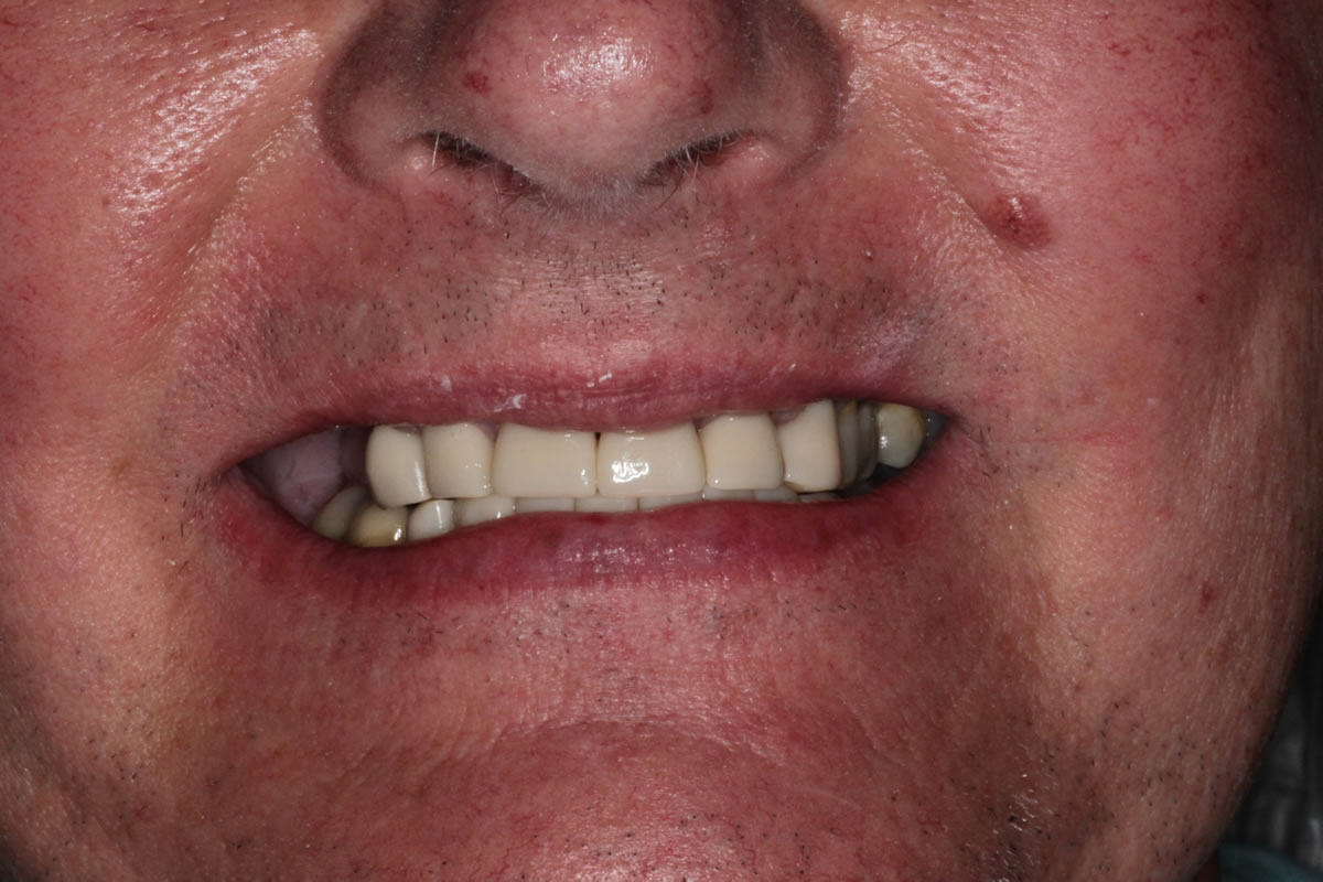 dean-before-after-cosmetic-dentist-crowns-dentures-1