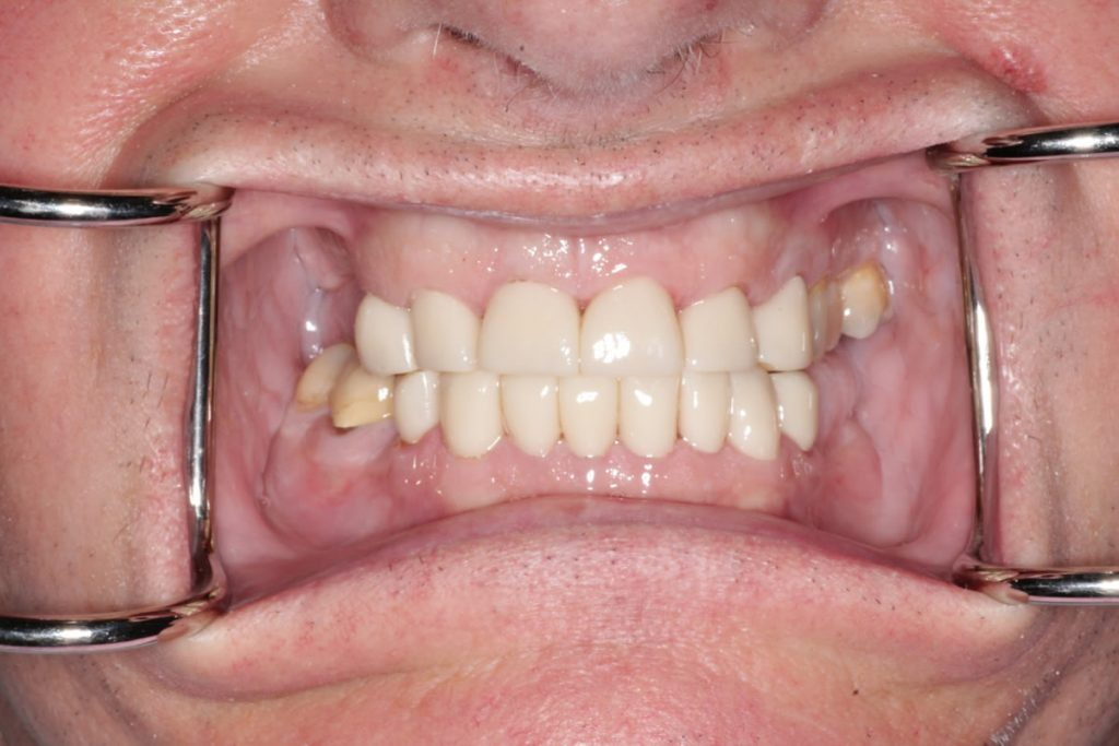 dean-before-after-cosmetic-dentist-crowns-dentures-2
