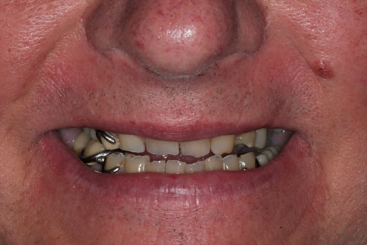 dean-before-after-cosmetic-dentist-crowns-dentures-4