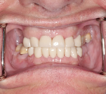 dean-before-after-cosmetic-dentist-crowns-dentures