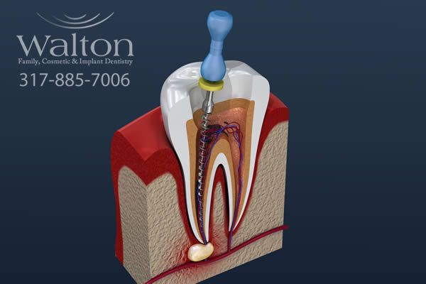 root-canal-explain