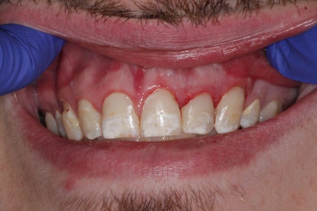 jacob-before-after-photos-after-resin-bonded-restorations