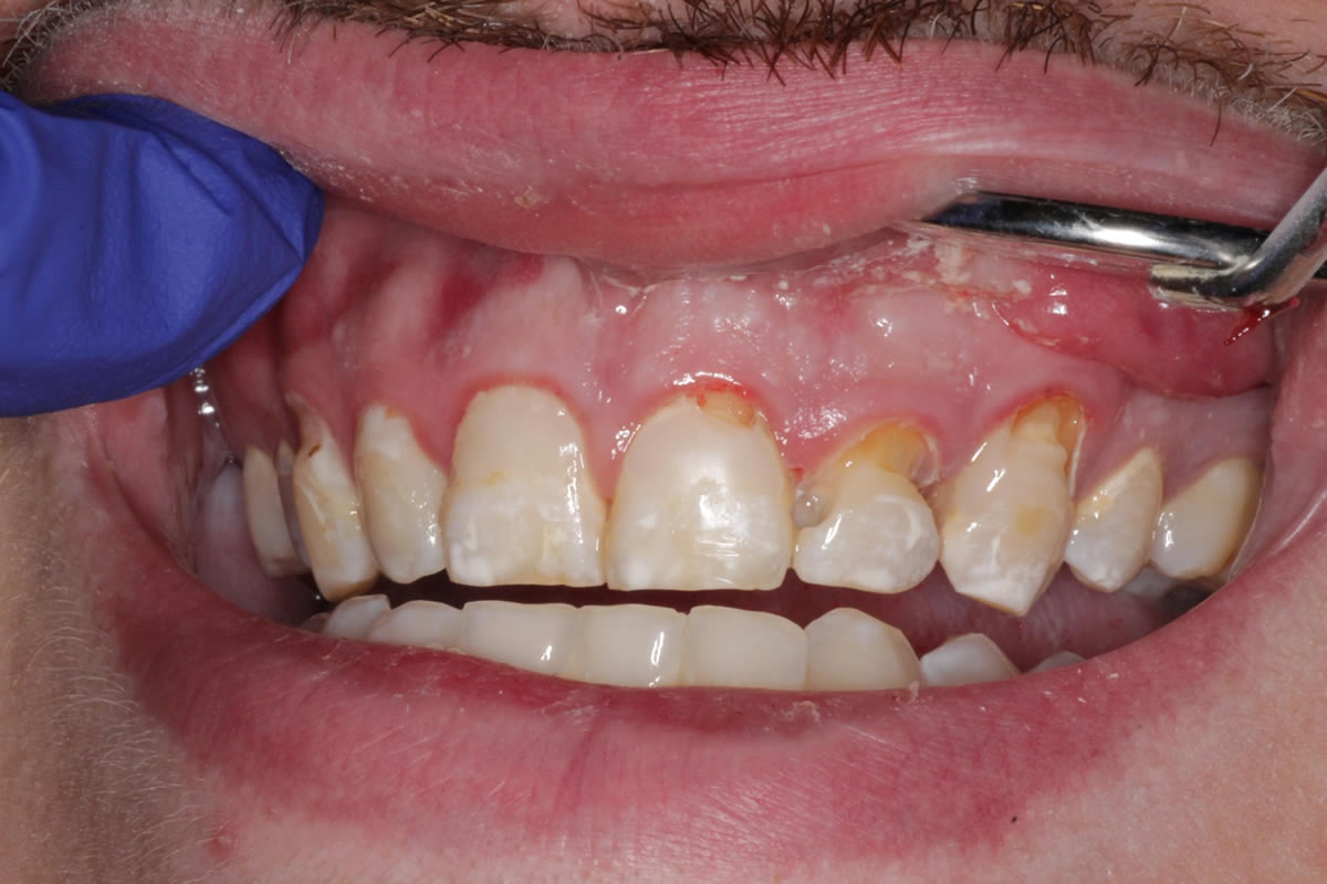 jacob-before-after-photos-before-resin-bonded-restorations